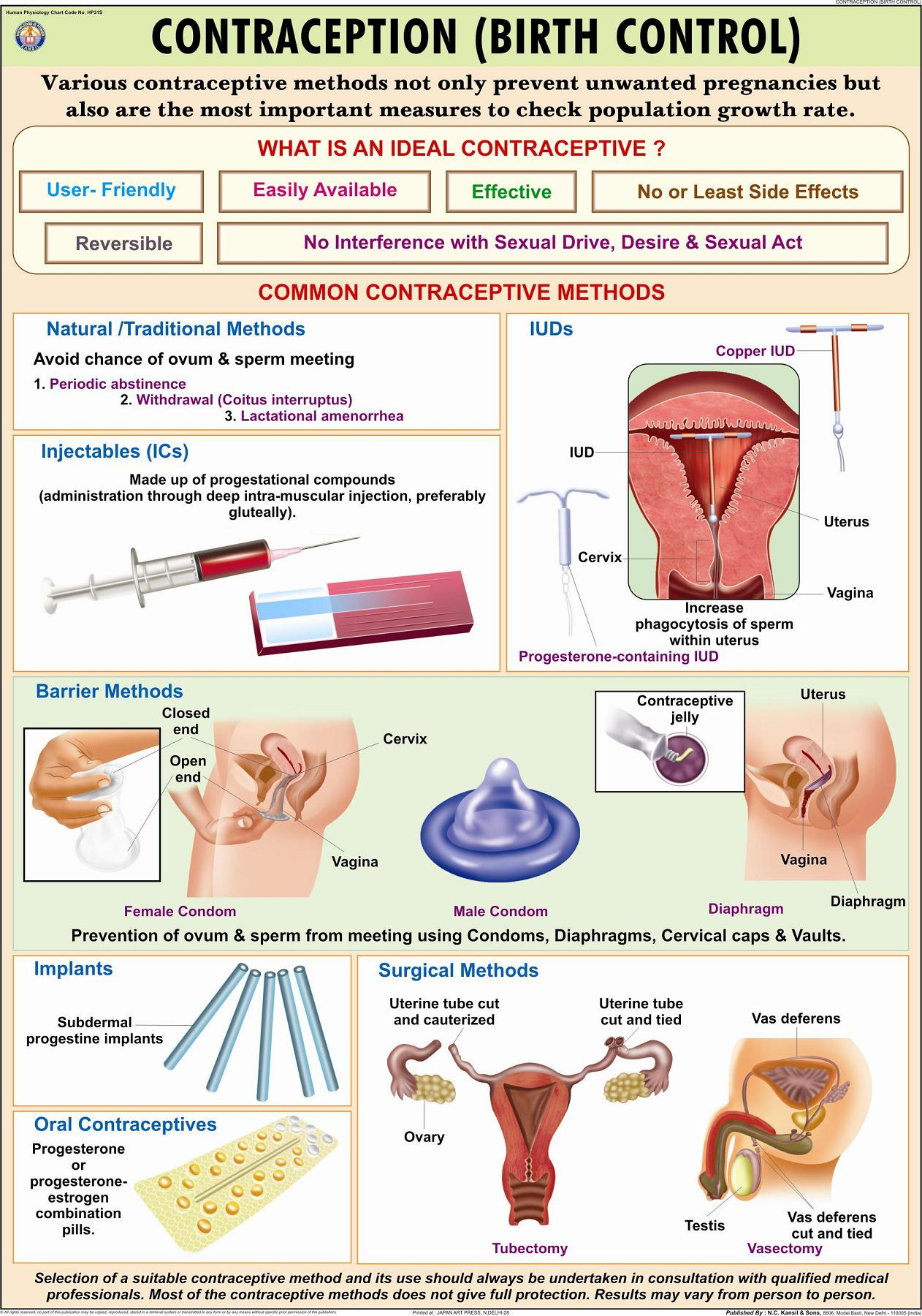 Contraception Birth Control Charts Contraception Birth