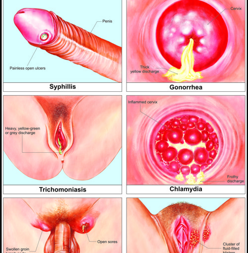 India sexually transmitted diseases